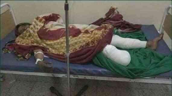 قاتل حوثي خفي يواصل حصد أرواح اليمنيين